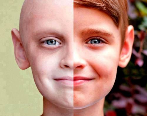 مبانی نظری و پیشینه تحقیق درباره سرطان 26 صفحه